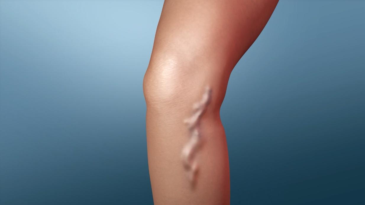 Ayurvedic Treatment For Varicose Veins – Dr.Mini Nair | Ayurhealing